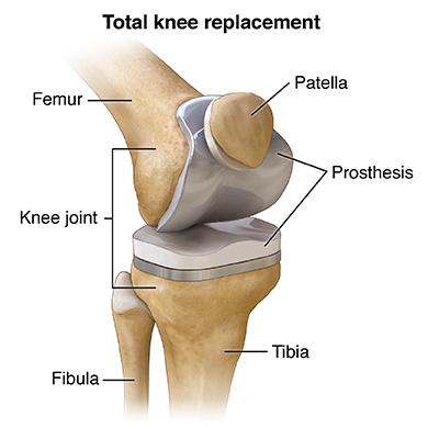 knee replacement treatment Singapore